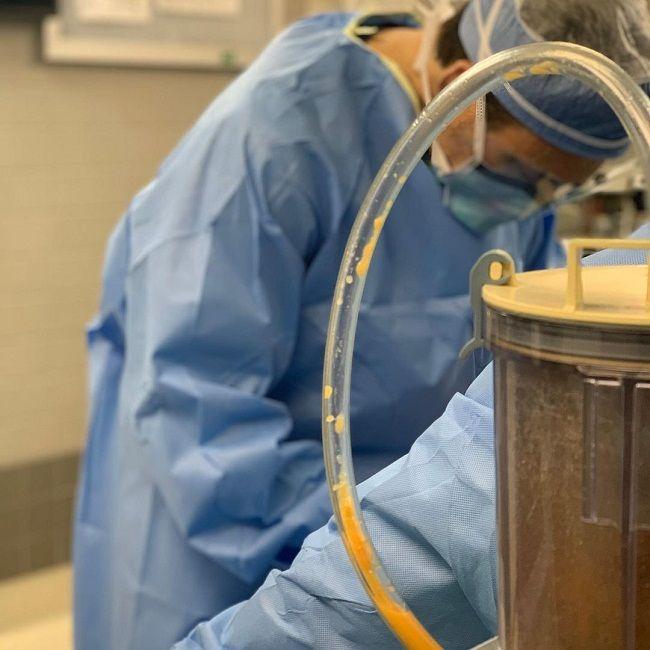 Dr William Bruno-Liposuction